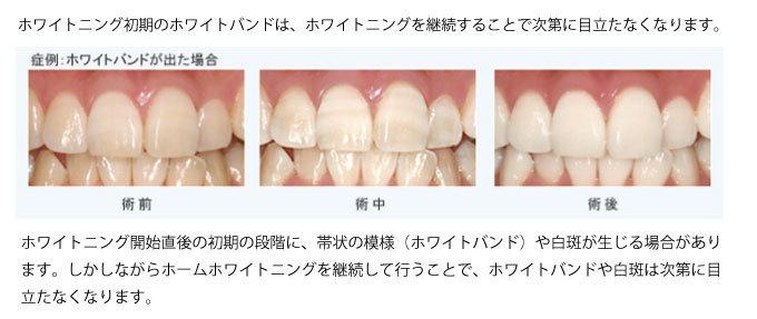 白く シート する を 歯 激落ちくんで歯が白くなる?!激落ちくん歯磨きシートの使い方